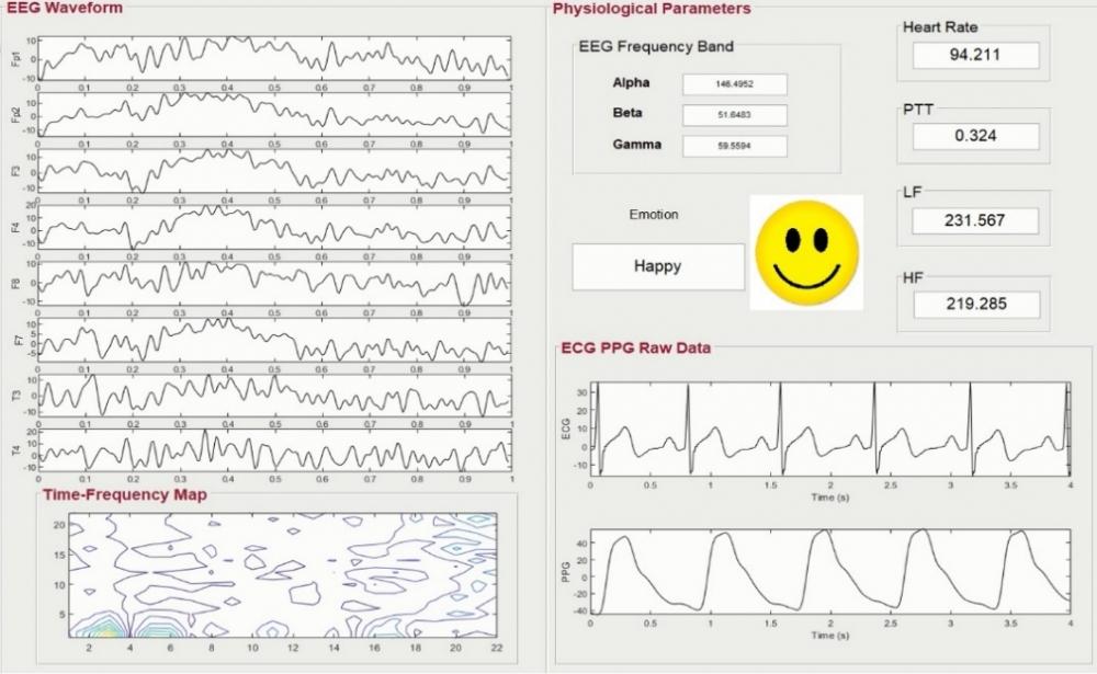 以AI為基礎的情緒辨識與生理訊號整合平台應用在心血管疾病